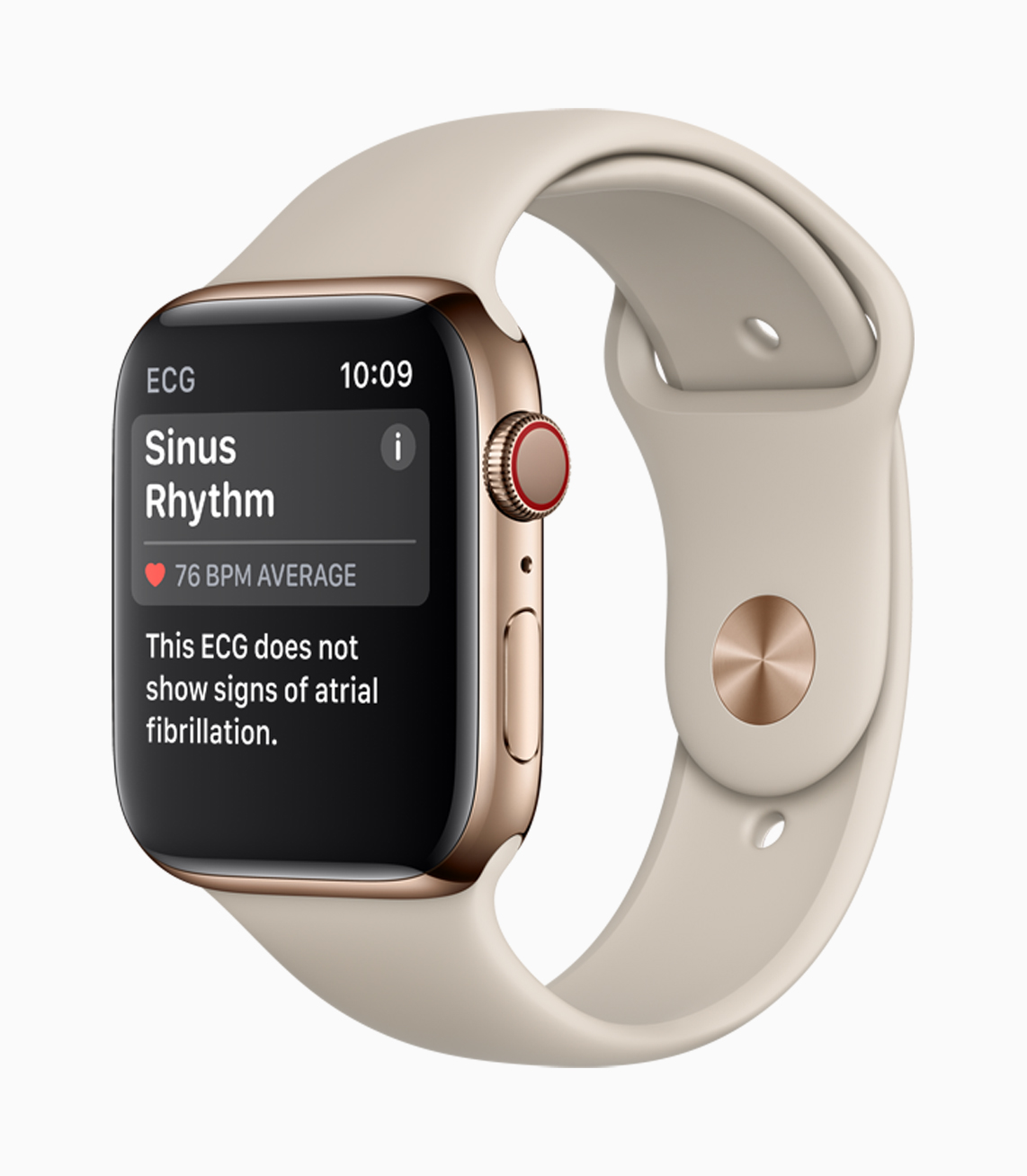 Apple Watch Series 4, Sinus Rhythm